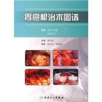 【正品】胃癌根治术图谱/韩方海译 价格:34.80