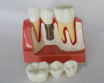 种植体分解模型 口腔模型 牙齿解剖模型 儿童教育培训护理模型 价格:330.00